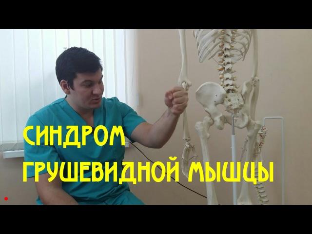 Синдром грушевидной мышцы Piriformis syndrome
