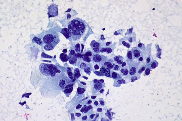 Как раковые клетки появляются в организме и что их отличает здоровых – узнайте из видеоролика.