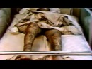 Acute radiation syndrome (the Ministry of defense of the USSR 1988) HD