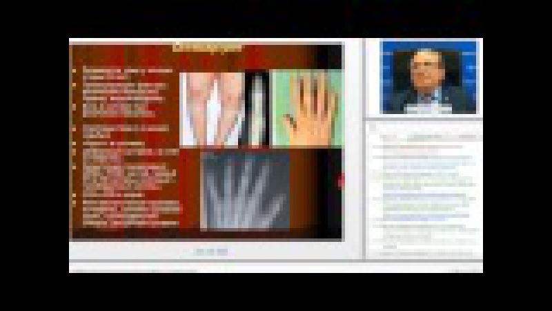 Мазуров В.И. Суставной синдром: принципы диагностики и лечения