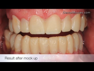 Dentistica pdf download odontologia restauradora mondelli pdf fandeluxe Image collections
