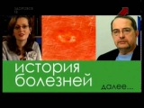 История болезней Оспа Variola vera)