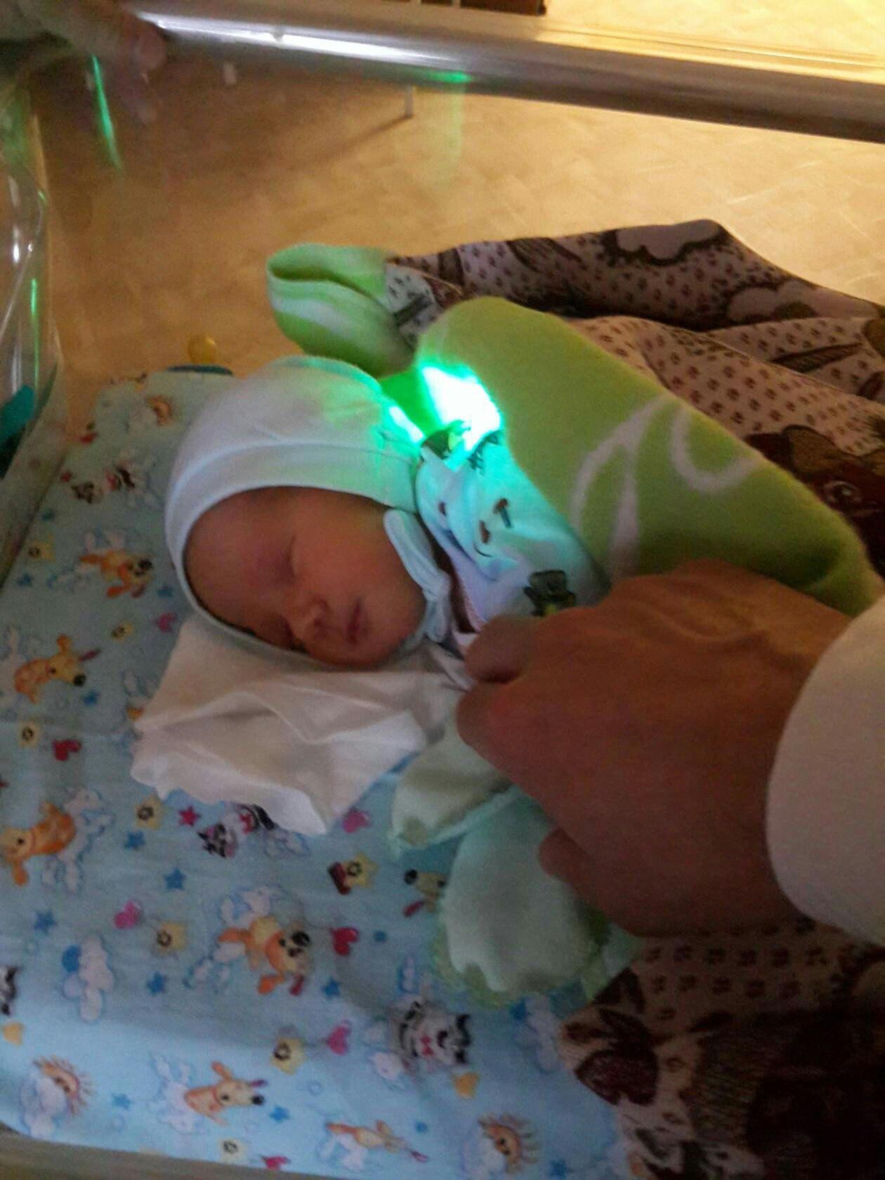 Фото ребенка под лампой от желтушки