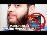 Отмена Миноксидила (minoxidil) для бороды, новый эксперимент!
