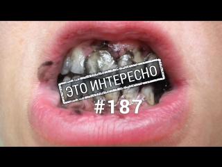 Это интересно: Шокирующие факты о зубной пасте