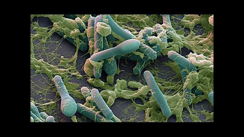 Самая опасная бактерия Clostridium Botulinum - вызывающая ботулизм способна уничтожить че...