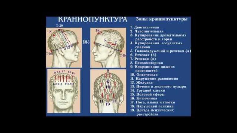 Краниопунктура. Дистанционное обучение иглотерапии (акупунктуре).