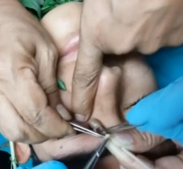 базилик перу глаз личинка комара