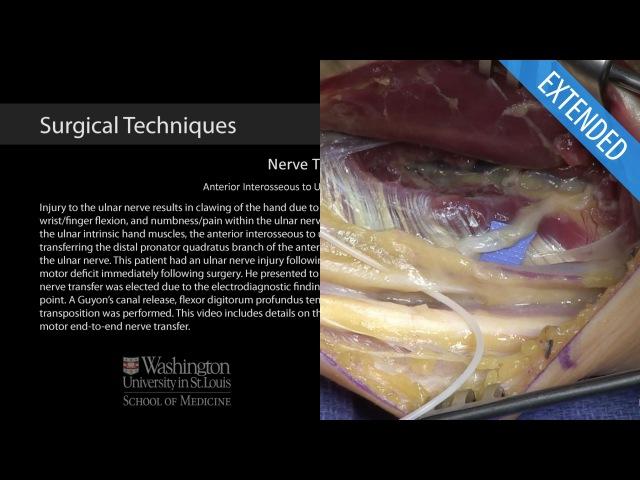 Anterior Interosseous to Ulnar Motor Nerve Transfer - Extended