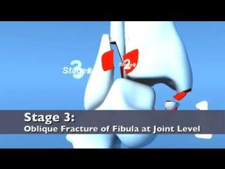 Lauge Hansen PAB Pronation ABduction (Eversion) Ankle Fracture