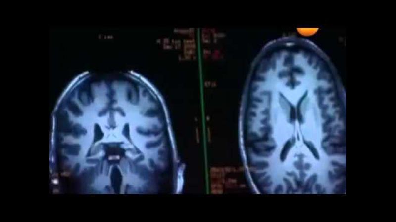 Влияние фтора из зубных паст на интеллект