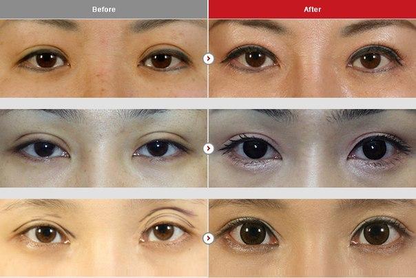 Как сделать глаза толще 422