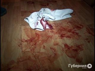 Молодой человек был ранен ножом в Хабаровске.MestoproTV
