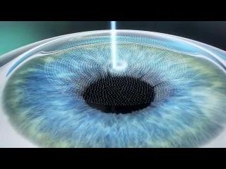 Femto Super LASIK - визуализация процесса коррекции зрения