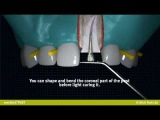everStickPOST Individually formable glass fibre root canal post
