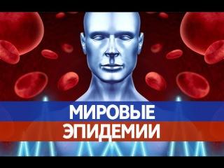НЕИЗЛЕЧИМЫЕ БОЛЕЗНИ. Эпидемии чумы, тифа и оспы, унесшие жизни МИЛЛИОНОВ людей!