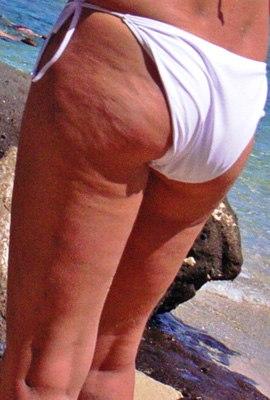 запущенный целлюлит, целлюлит 3 стадии, целлюлит на попе и ногах,