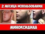 Миноксидил (Minoxidil) 5, 2 МЕСЯЦА ПРИМЕНЕНИЯ
