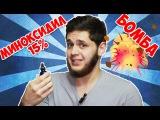 Миноксидил 15% бомба для волос! Minoxidil 15%