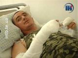 Тернопільський волонтер отримав майже 40% опіків тіла