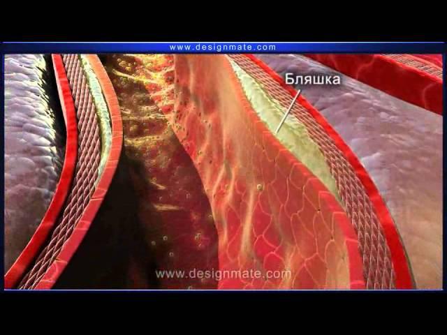 Учебные фильмы Eureka (Эврика). Атеросклероз (болезнь сердца).