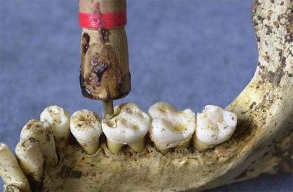 Стоматология прошлого