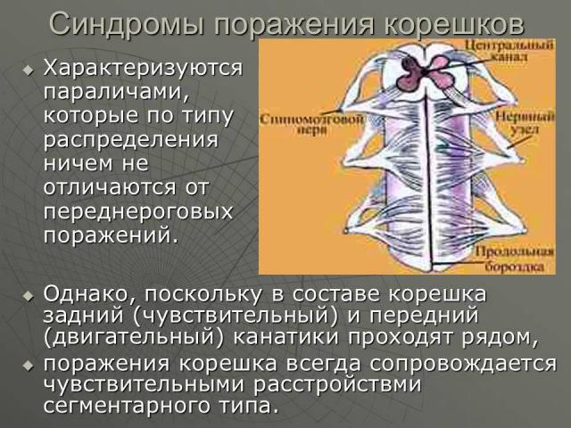 Синдромы поражения периферического двигательного нейрона