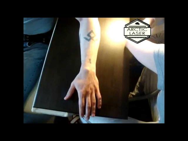 Удаление татуировок на лазере ng001