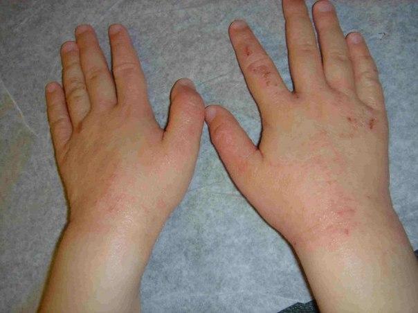 lechenie-psoriaza-lampoy-bioptron