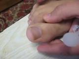 Семья Бровченко. Что делать, если ноготь врезается в кожу пальца на ноге. Как обойтись без хирурга
