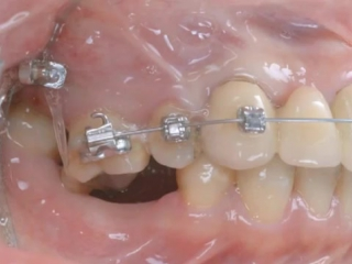 Ortho-implant 2
