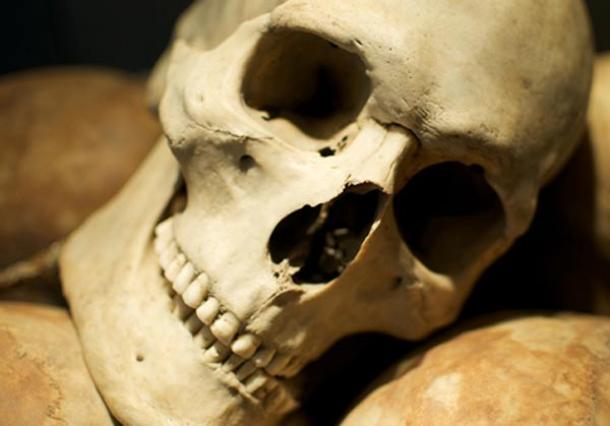 древний череп с металокерамикой