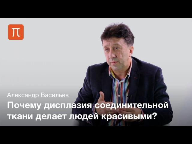 Дисплазия соединительной ткани Александр Васильев