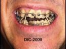 Лечение 3 класса с выраженной скученностью на брекетах Damon 3 с применением ранних эластиков. Ортодонтия.