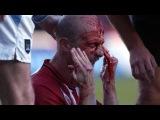 Самые страшные травмы в истории футбола, жуткое видео