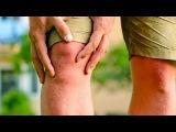 Болят суставы рук и ног что делать ! Как лечить боли в суставах -часть 1