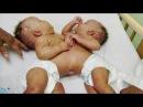 Доминиканские близнецы (Моя ужасная история)