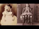 Цирк уродов истории и трагедии цирковых уродцев, 10 самых страшных историй ужасн...