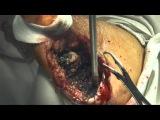Применение PlasmaJet® в гнойной хирургии