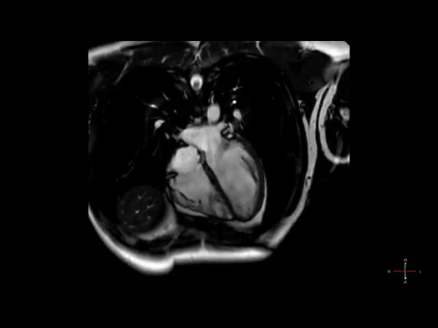Cardiac MRI scan shows a heart beat in high resolution - ECG gated CMRI in HD