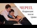 ЧЕРЕП Коррекция нарушений Остеопатия Прикладная кинезиология