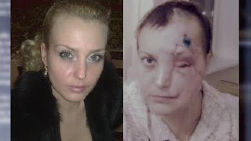 Жизнь без лица три года в маске От 09 12 15