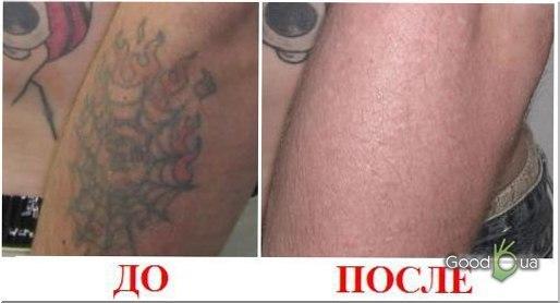 Как избавиться от татуировки без шрамов