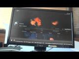 Настройка IPTV в MINIX NEO X6 Quad-Core Android мультимедиа приставка