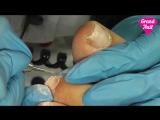 Аппаратный Педикюр Отрезание Кутикулы Фрезой Этап 3