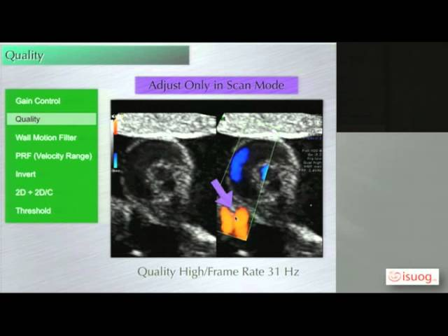 How to optimise the Machine settings for examination of the fetal heart