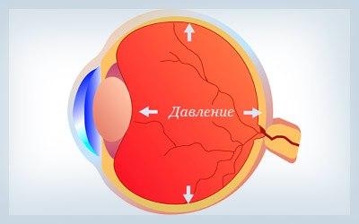 Глаукома – неизлечимая болезнь, незаметно