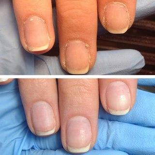 Фото аппаратного маникюра до и после