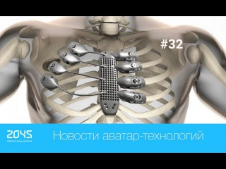 #32 Новости аватар-технологий / 3D-напечатанная грудная клетка, Трансплантация головы человека etc