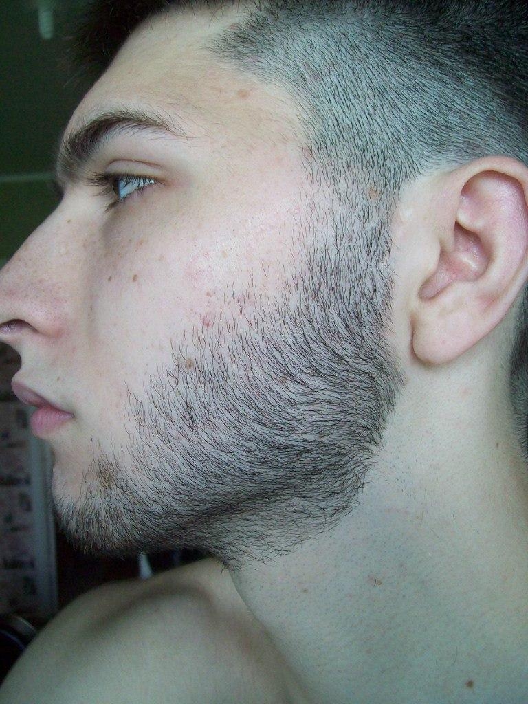 Выращивание бороды миноксидил 68